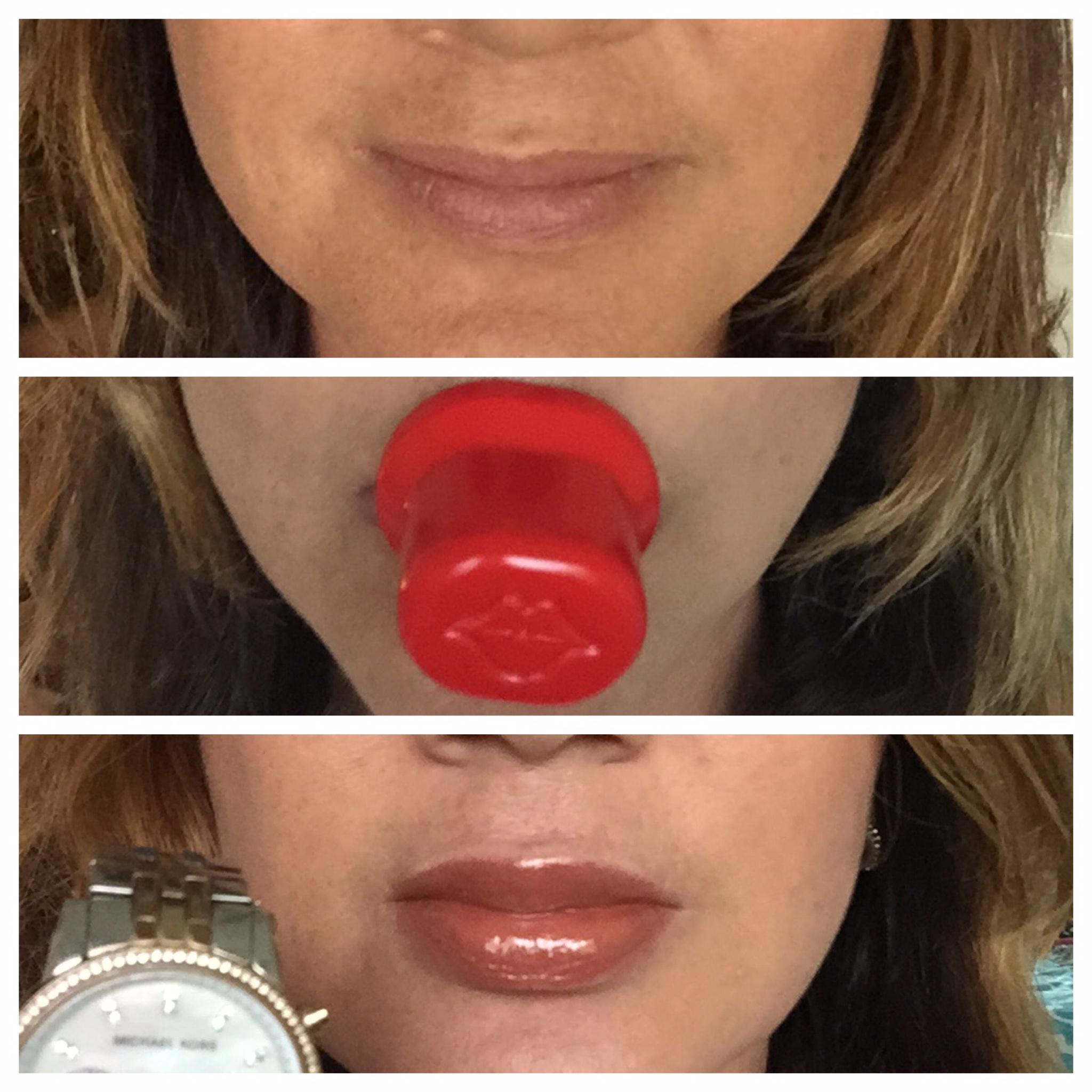 Как увеличить губы в домашних условиях навсегда для